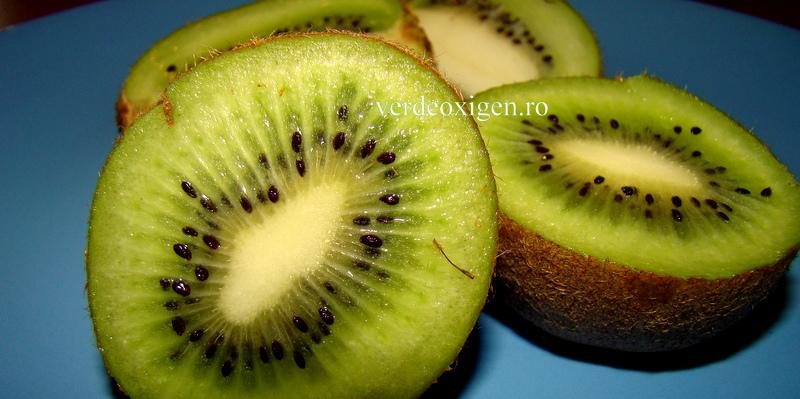 kiwi suculente